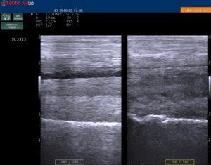 Bac Technology presenta il caso di Fulmine, in collaborazione con la Clinica di San Rossore 4
